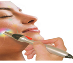 Acupuncture non-needle Face Lift